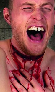 Picture of LATEX WOUND SLIT THROAT